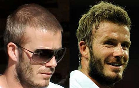 David Beckham Hair Transplant And Hairline Change