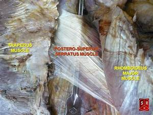 Serratus posterior superior muscle - Wikipedia