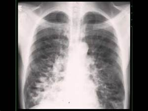 Cystic Bronchiectasis on Chest X ray - YouTube
