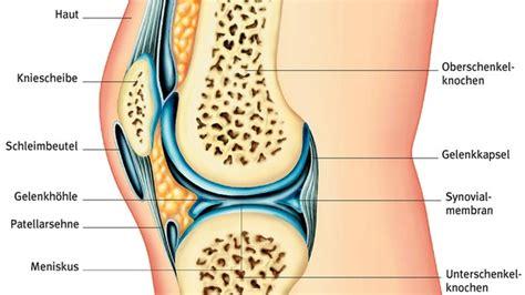 Knie arthritis