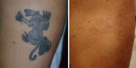 tattoo removal    nyc