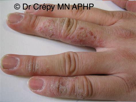 boulanger atlas de dermatologie professionnelle