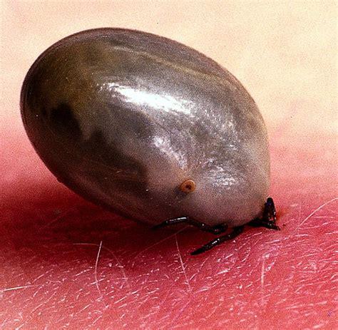 zecken stiche  eine unentdeckte borreliose infektion