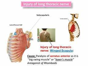 upper arm muscle pain when raising arm