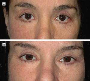 Combined Transconjunctival Release And Midface