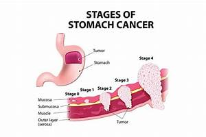 Stomach Cancers - Gastrointestinal Conditions