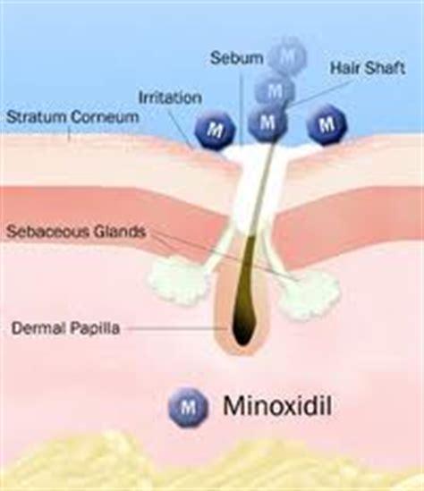 Los Andrógenos, Testosterona, DHT y La Calvicie