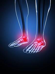 Foot Pain  U0026 Inflammation