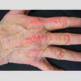 dermatomyositis