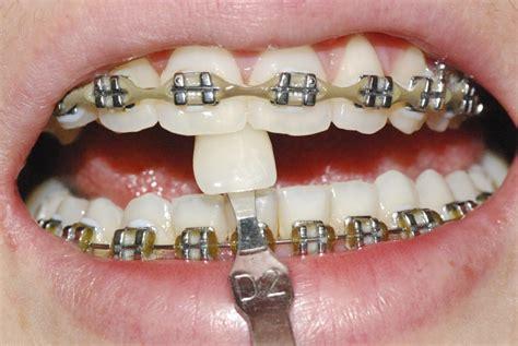 clareamento dental de consultorio  aparelho fixo
