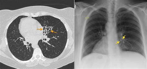 kartageners syndrome radiology  st vincents