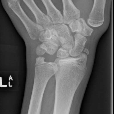 cleft ulnar epiphysis  persistent radial styloid