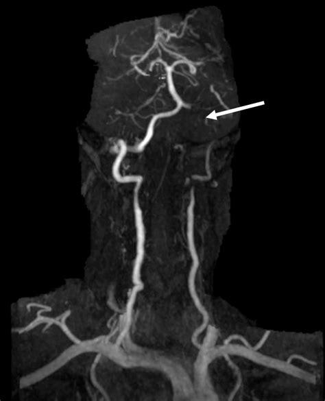 Bilateral vertebral artery dissection and cerebellar ...