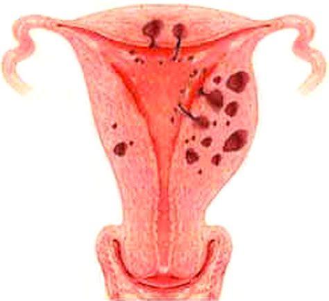 2 Rahim Pada Wanita Kanker Rahim Konsultan Kolesterol