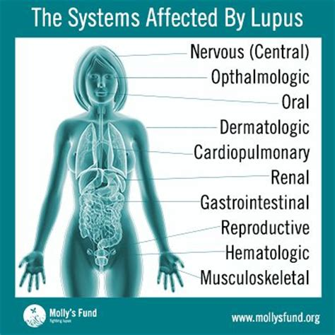 Lupus Meme - best 25 muscular dystrophy symptoms ideas on pinterest symptoms of muscular dystrophy