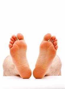 Plantar Warts On Bottom Of Foot
