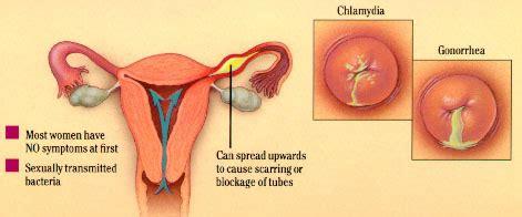 Diagram Of Chlamydium by 10 Symptomless Yet Dangerous Diseases