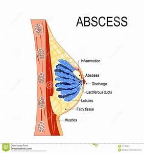 Abscess Cartoons  Illustrations  U0026 Vector Stock Images