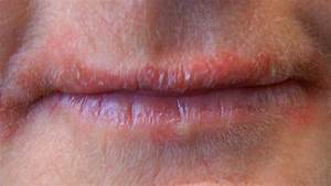 Bumps on Lips: Causes, Treatments, and More