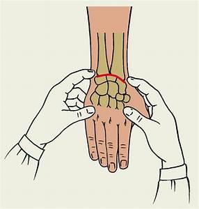 Опух и болит сустав большой палец левой ноги