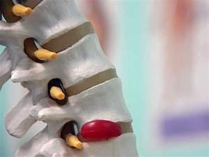 Боль при ходьбе в суставах ног