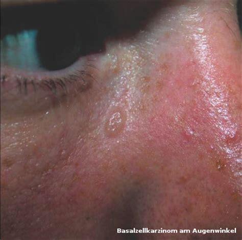 hautkrebs das basalzellkarzinom hautarztpraxis dr med
