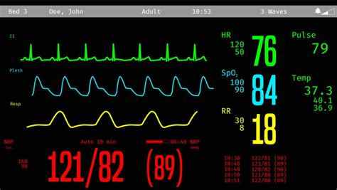 Stock Video Of Monitoring Of Patient's Condition, Vital. Random Signs. Violent Signs. Flame Signs. Potty Training Signs. Learning Center Signs Of Stroke. Masking Signs. Cerebral Palsy Signs. Vital Signs