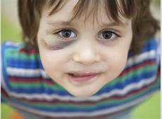 Child abuse What to do if you suspect abuse BabyCenter