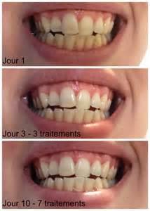 Comment Déboucher Une Baignoire Avec Du Bicarbonate by Comment Blanchir Nos Dents Naturellement Dans Le Ch