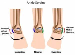 What happens when you 'roll' your ankle? | KC Bone & Joint