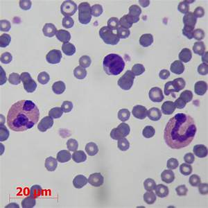 Basophil And Eosinophil