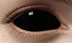 Черные линзы – стильный аксессуар или враг зрения?