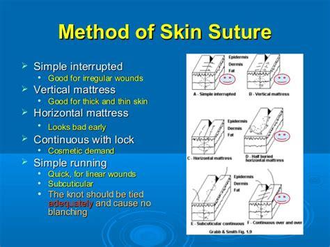 Sutures Materials