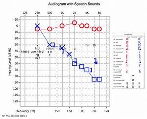 Summer Of Sound Audiograms Sound Speech And Hearing