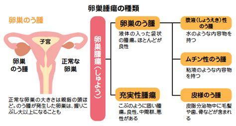 卵巣 の う 腫