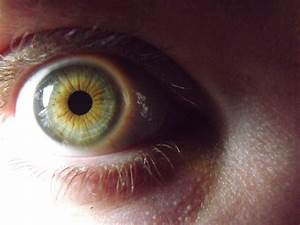 Any one else here a mutant? Heterochromia.