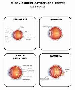 Diabetic Retinopathy Detailed Illustration  U2014 Stock Vector