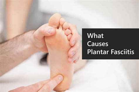 What Causes Plantar Fasciitis To Flare Up? Thestyleshoes
