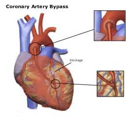 Cabg: Definition with Cabg Pictures and Photos Coronary Artery Bypass Graft