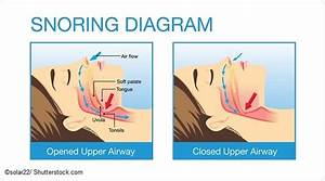 Types And Causes Of Snoring