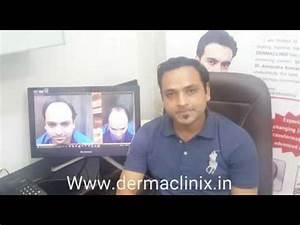 Hair Transplantation in West Delhi via BEST FUE Method by ...