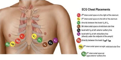 Image Result For 12 Lead Ecg Placement Ekg Placement