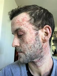 Man Repeatedly Prescribed Steroid Creams That Only Worsened His Severe Eczema Was Shocked To Be