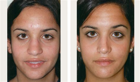 rhinoplasty nyc cost recovery reviews   pics