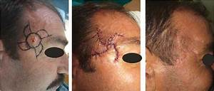 Case 12  Early And Late Aesthetic Results In A Patient With Basal Cell