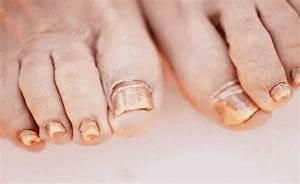 Самые эффективные народные средства от грибка ногтей на ногах быстро