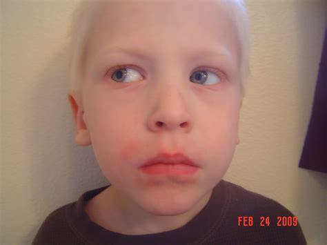 Food Allergy Rash Around Mouth Foodfashco