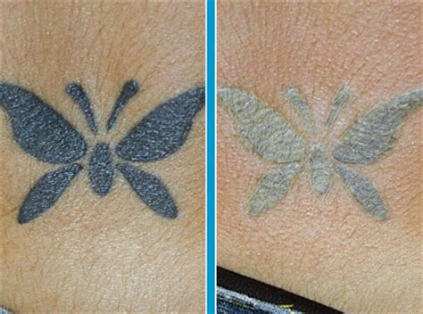 home tattoo removal methods safe