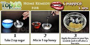 Home Remedies For Chapped Lips Page 2 Of 2 Top 10 Home