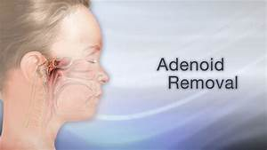 adenoid, removal, maybe, your, child, snores, a, lot, , maybe, your